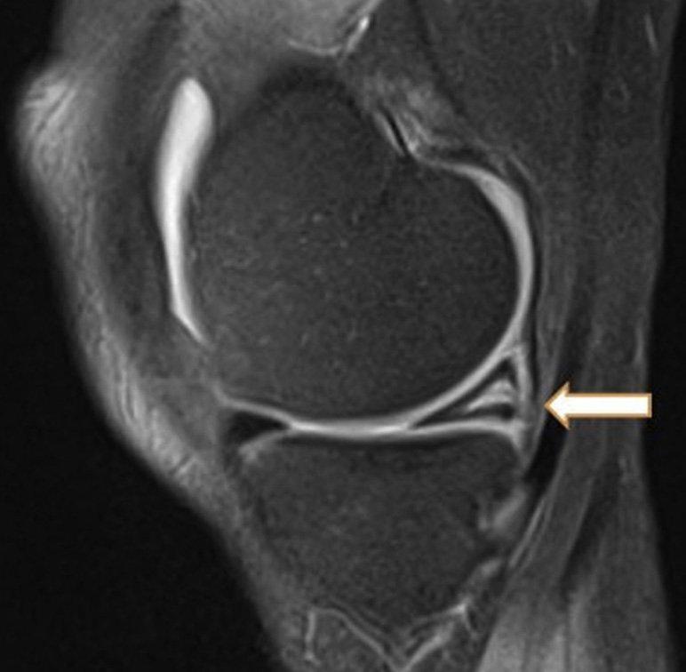 Degeneração intrassubstancial do corno posterior do menisco medial