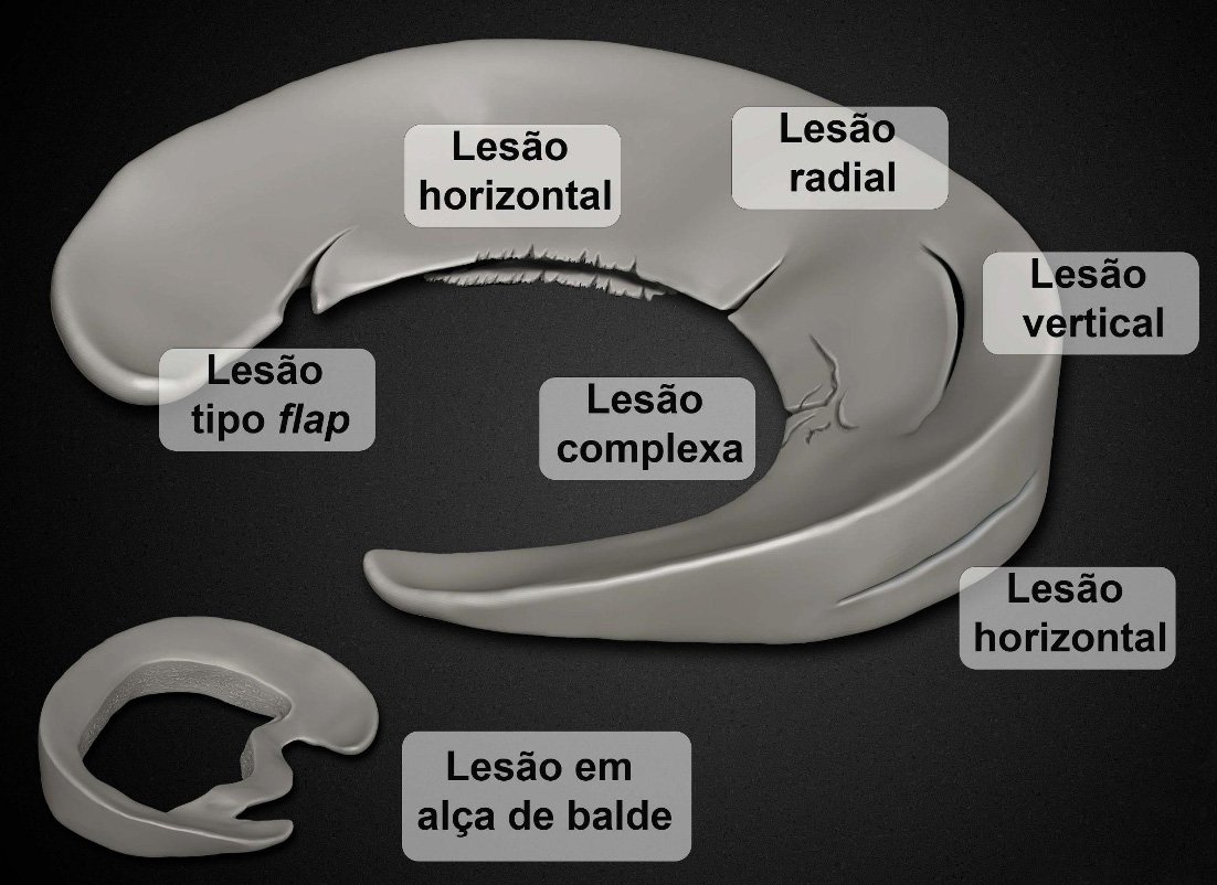 Meniscos e Lesões Meniscais | Dr. Pedro Giglio
