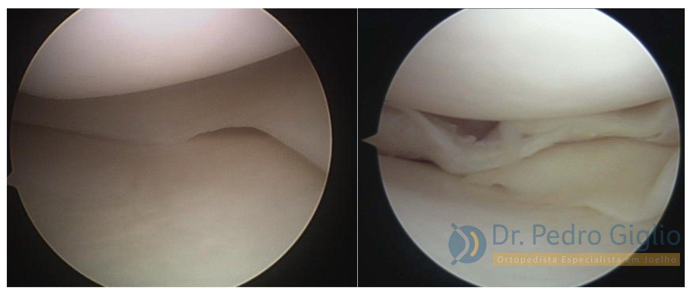 Vídeo da artroscopia de menisco | Dr. Pedro Giglio