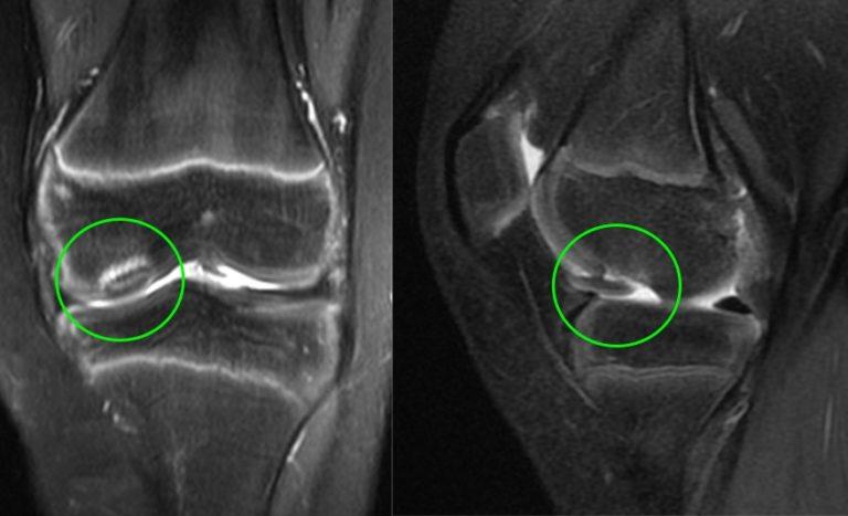 Osteocondrite dissecante – lesão de cartilagem em crianças e adolescentes