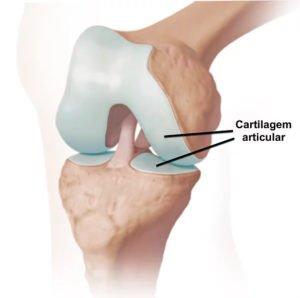 Lesões da cartilagem, condropatia, condromalácia
