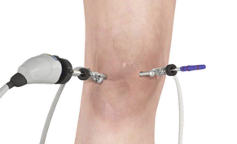 artroscopia-do-joelho-dr-pedro-giglio-768×469