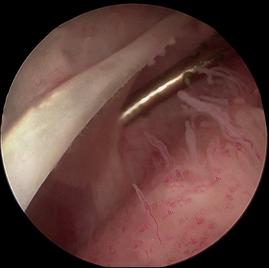Plica sinovial no joelho   Dr. Pedro Giglio