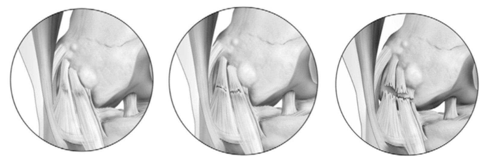 Graus de lesão ligamentar   Dr. Pedro Giglio