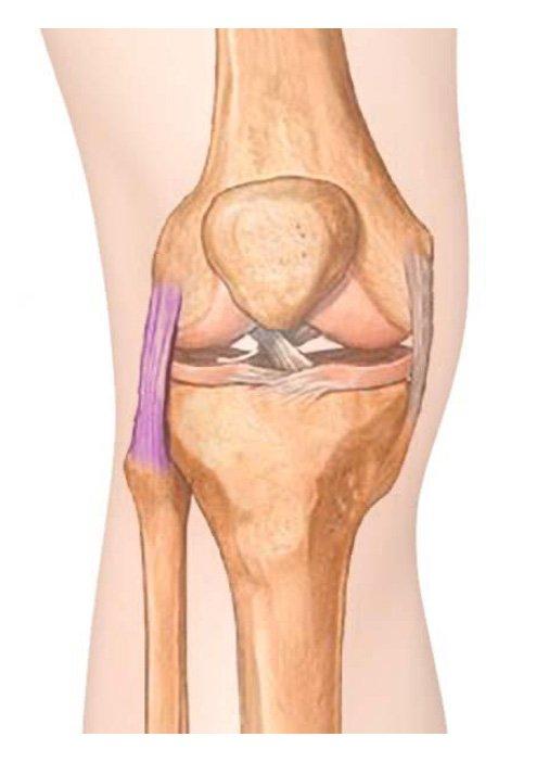 Ligamento colateral lateral   Dr. Pedro Giglio